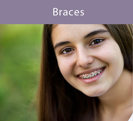 Young woman smiling with braces.