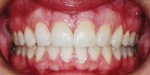 Photo of mouth after veneers.