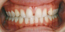 Photo of mouth before veneers.