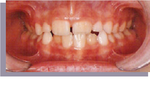 a great smile arizona transform your smile BEFORE