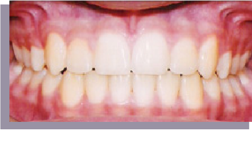 a great smile arizona transform your smile after