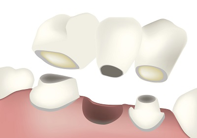 Diagram of a dental bridge from dentist office in Tempe, AZ.