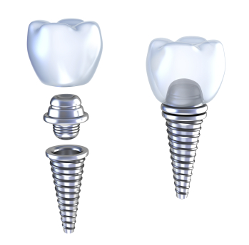 Diagram of dental Implants by dentist in Tempe, AZ.