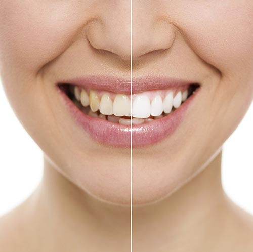 Teeth Whitening at A Great Smile Arizona